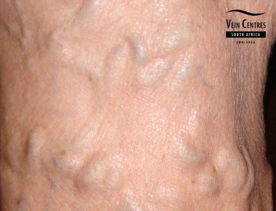 Vein Surgery – Advanced Vein Surgery